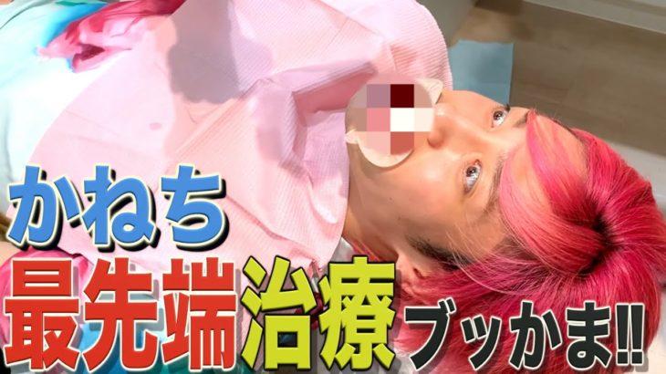 【日本最先端⁉︎】ダイレクトベニア治療でかねちーの歯並び劇的ビフォーアフターブッかま‼︎
